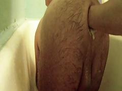 V anal